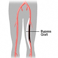 Surgical bypass graft